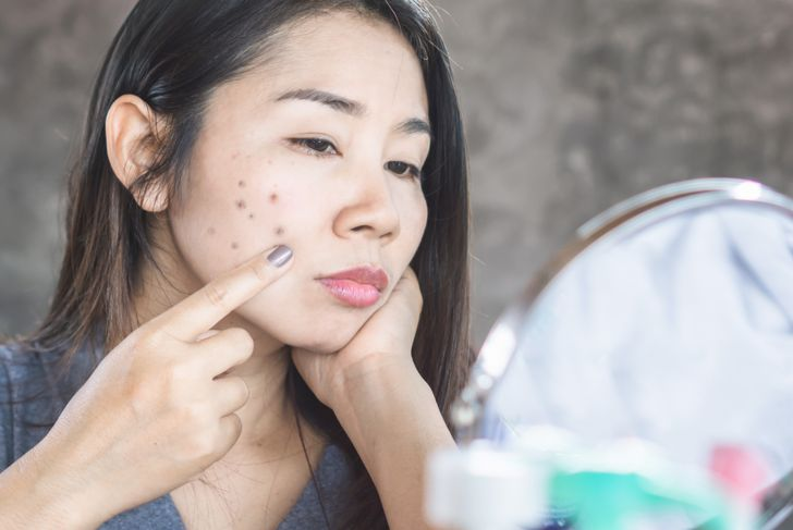 unhappy Asian woman checking her face skin problem with dark spot from scar acne
