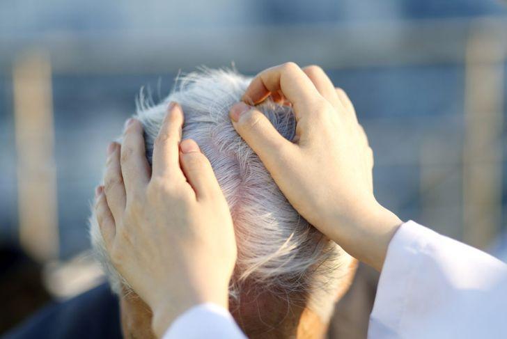 dermatologist examining hair
